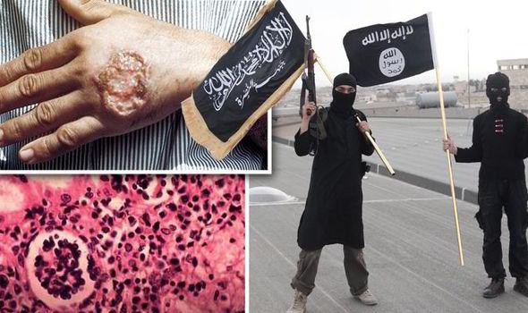 Islamic-State-Raqqa-flesh-eating-disease-567597