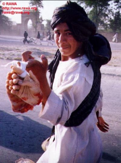 Restes de victimes de la Charia en Afghanistan