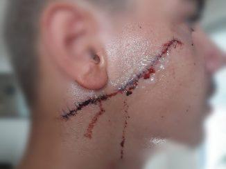 agression-au-couteau-dun-jeune-de-15-ans.jpg